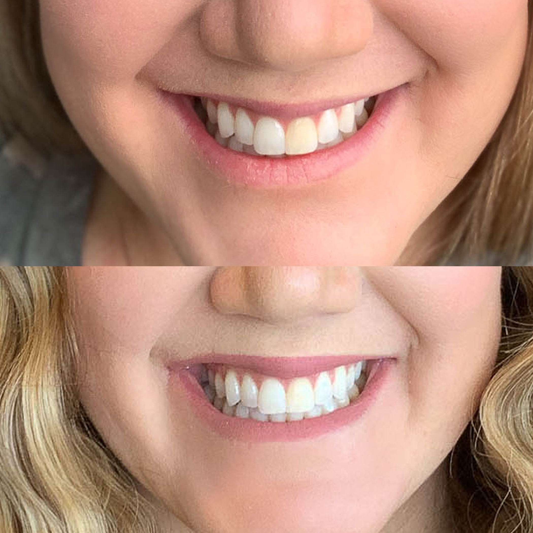 Crest 3d Whitestrips 14 Day Challenge Results All Things Thrifty